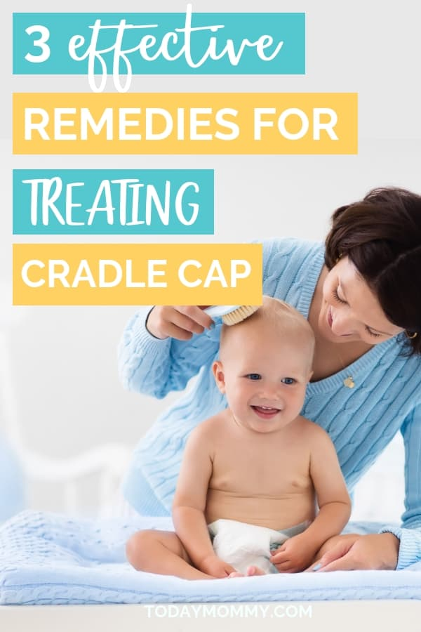 Cradle Cap: What Is It And How To Get Rid Of It